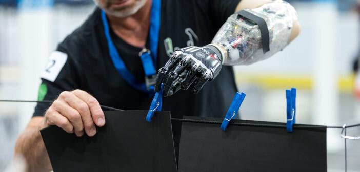 Die Muskelaktivität im Arm wird in die entsprechende Bewegung der Prothese umgewandelt. © ETH Zürich/Alesandro Della Bella