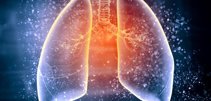 Als ambulant erworbene Pneumonie wird eine Lungenentzündung bezeichnet, bei der sich der Patient außerhalb des Krankenhauses angesteckt hat. © Sergey Nivens / shutterstock.com