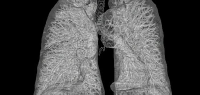 Therapeutische Gene als Hoffnungsträger. 3D-Rekonstruktion menschlicher Lunge aus CT-Bildern. © Andreas Heinemann / Common Creatice CC BY 2.5