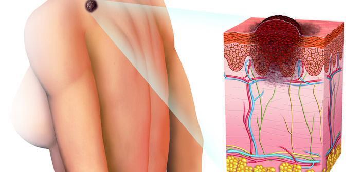 Als Hoffnungsträger in der Therapie von Hautkrebs Immuntherapie erfolgreich eingeführt. © Alex Luengo