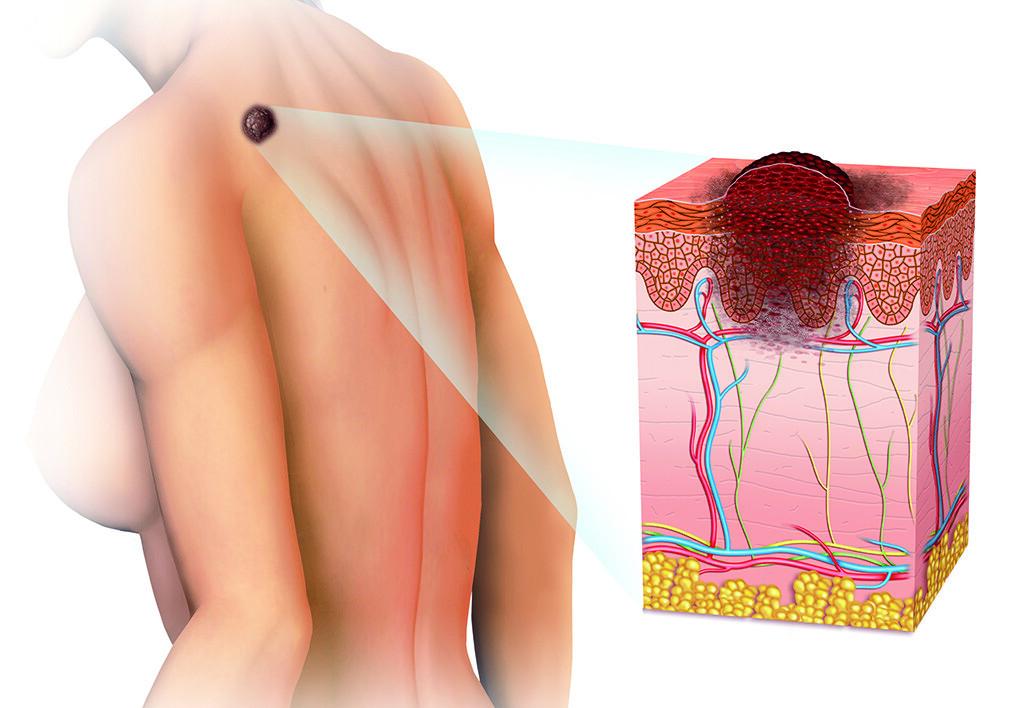 Картинки по запросу Hautkrebs behandlung