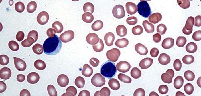 Diese Studie wirft ein völlig neues Licht auf die Mechanismen der Entstehung von Leukämie bei Kindern. © Creative Commons / wikimedia