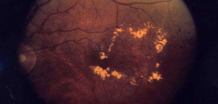 Diabetisches Makulaödem - Therapie frühzeitig beginnen. © National Eye Institute / NIH