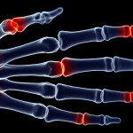 Damit nicht dauerhaft die Finger schmerzen, sollte man die Ursache rasch finden und behandeln. © Sebastian Kaulitzki / shutterstock.com