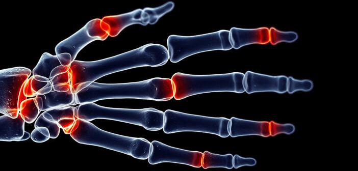 Wenn die Finger schmerzen – Ursachen frühzeitig abklären