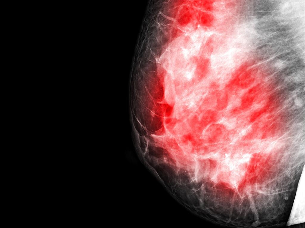 """Eine starke psychische Belastung hat für die Beantwortung der Frage """"wie stark sind die Schmerzen nach einer Brust-OP wirklich?"""" sehr große Bedeutung. © thailoei92 / shutterstock.com"""