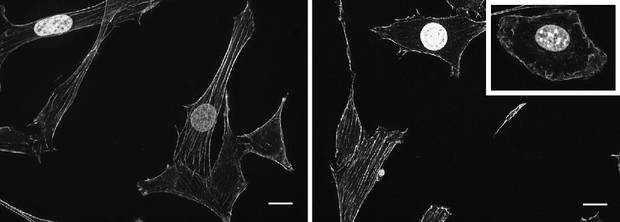 Trümmer versperren den Weg zum Zellkern: DYRK1A bewirkt, dass Fasern in der Zelle fragmentiert bleiben (Bild rechts, oberer Bildrand), während sie normalerweise ein Gerüst aufbauen (links). © Autoren / AG Lauth