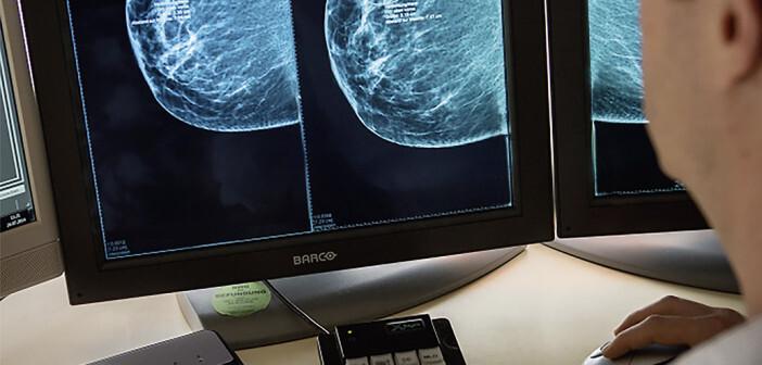 Mammographie-Befundung © KoopG