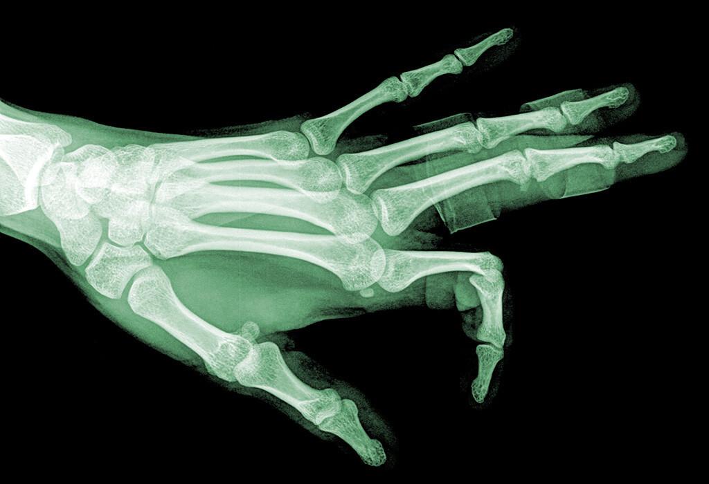 Rheumatoide Arthritis gehört zu den häufigsten Rheumaerkrankungen, früh erkennen und behandeln ist besonders wichtig. © thailoei92 / shutterstock.com