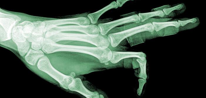 Rheumatoide Arthritis gehört zu den häufigsten Rheumaerkrankungen. © thailoei92 / shutterstock.com