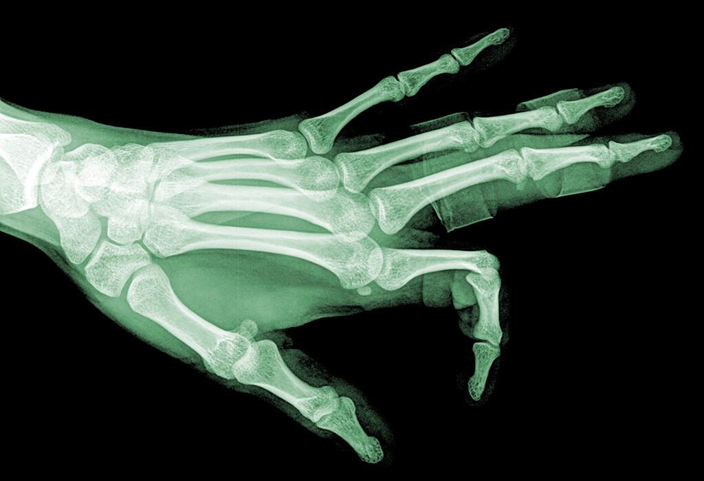 Rheumatoide Arthritis: Neuer Therapie-Ansatz gegen Rheuma