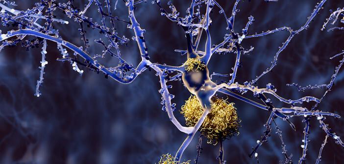 Eingeschleuste Immunzellen konnten die Bildung von Alzheimer-Plaques, die in der Grafik gut erkennbar sind, nicht rückgängig machen. © Juan Gaertner / shutterstock.com