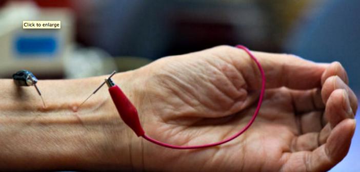 Die positiven Effekte der Elektroakupunktur-Behandlung hielten etwa eineinhalb Monate an. © Chris Nugent / UCI