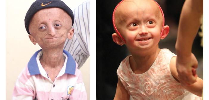 Progerie ist der Fachbegriff für eine Erkrankung, die Kinder zehnmal schneller altern lässt. © PRF
