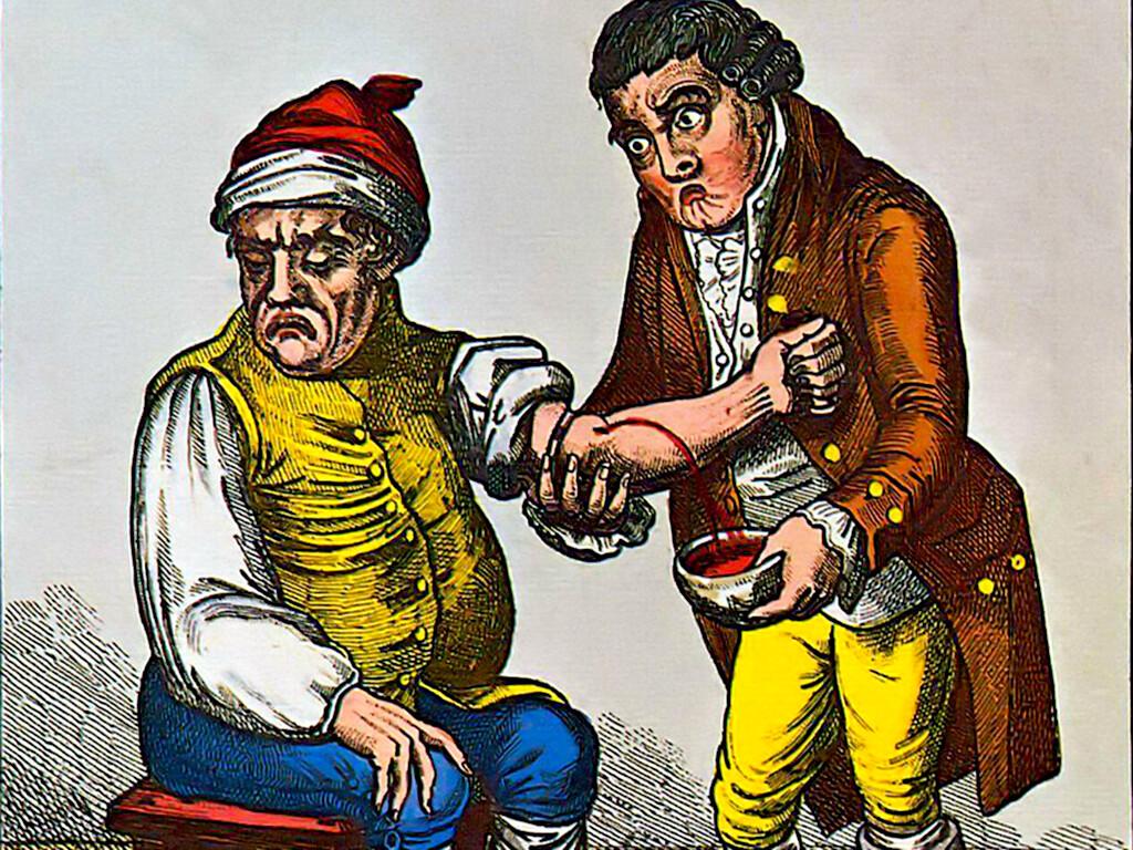 James Gillray 1757-1815 - Gemälde: Der Aderlass (um 1805) © wikimedia