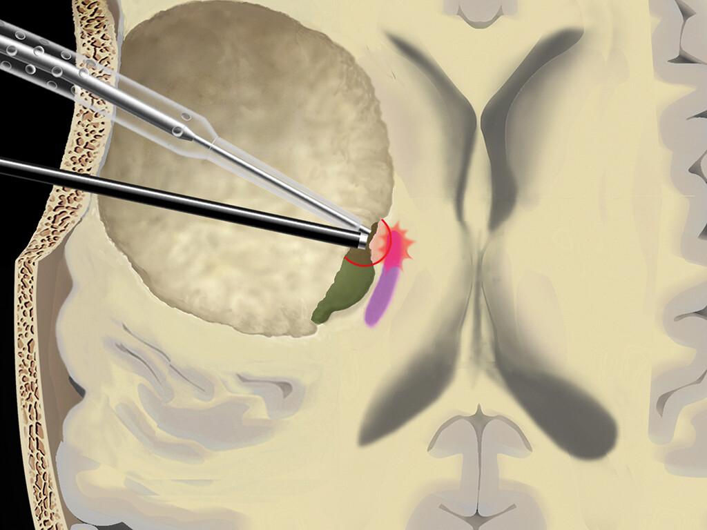 Illustration: Die Hybridsonde (schwarz) zeigt dem Chirurgen während der Operation via akustisches Signal, wie nah sich dieser an einer motorischen Bahn im Gehirn befindet (lila). © Universitätsklinik für Neurochirurgie, Inselspital, Universitätsspital Bern