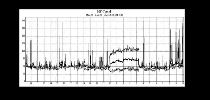 Herzfrequenzdiagramm eines LZ-EKG mit einer Episode von Vorhofflimmern zwischen 23:00 und 3:20 Uhr. © J. Heuser / CC BY-SA 3.0 / wikimedia
