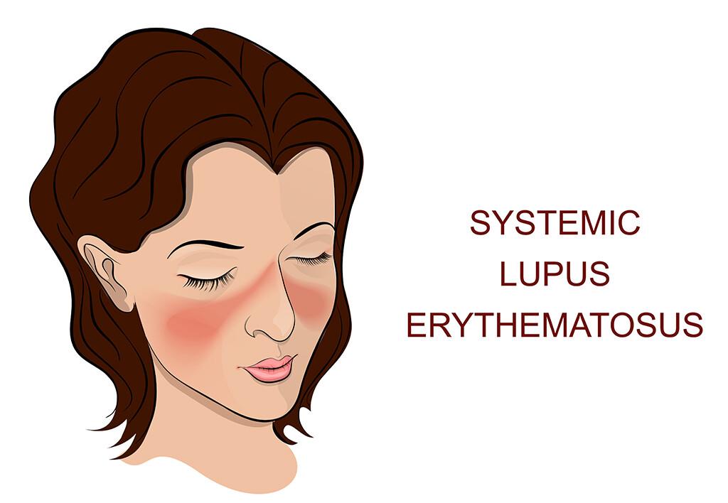 Belimumab ist der erste Wirkstoff seit mehr als 50 Jahren, der ausdrücklich gegen systemischen Lupus Erythematodes entwickelt und zugelassen wurde. © Artemida-psy / shutterstock.com