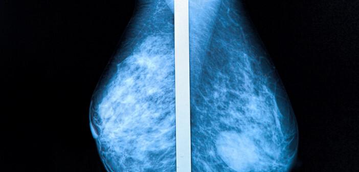 Während in Österreich Ultraschall nach Mammographie nicht selten vorkommt, mangelt es in Deutschland an Information und Beratung. © Photoprofi30 / shutterstock.com