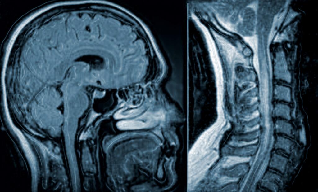 Die Neuromyelitis optica galt lange Zeit als Unterform der Multiplen Sklerose.
