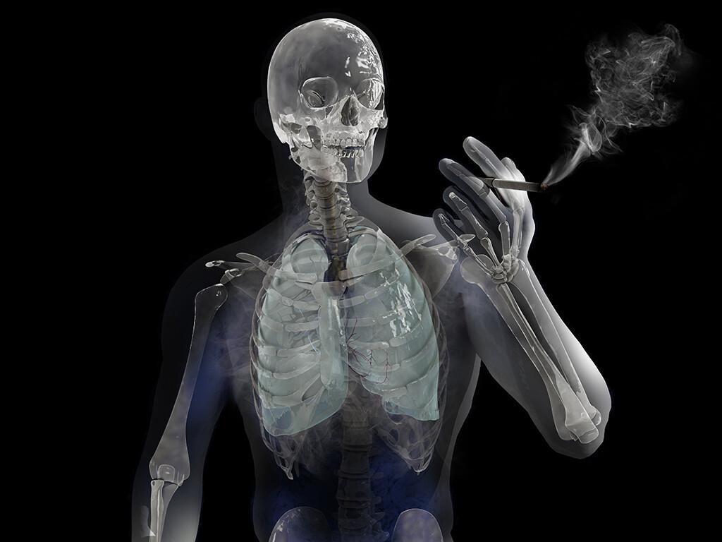Lunge raucher und nichtraucher Raucherlunge nach