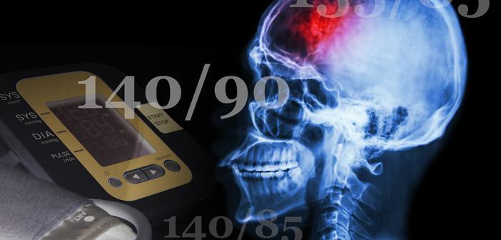 Eine antihypertensive Therapie soll unbedingt eingeleitet werden, wenn der Blutdruck über 140/90 beträgt (manche Experten fordern 135/85). © Puwadol Jaturawutthichai / Sappasit / shutterstock.com / Montage: AFCOM