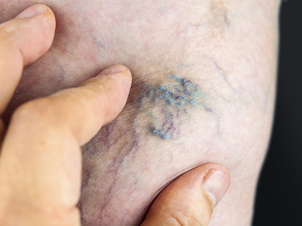 Krampfadern, Varizen, sind Venenerkrankungen, die als Besenreiser und netzförmige Venen sichtbar werden. © Hriana / shutterstock.com
