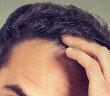 In den letzten Jahren hat sich gezeigt, dass bei immer mehr jungen Männern androgenetischer Haarausfall vorkommt. © PathDoc / shutterstock.com