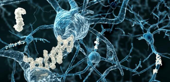 Wissenschaftler konnten jetzt zeigen, dass die bei Alzheimer gebildeten β-Amyloid-Plaques direkt Störungen bei den sogenannten langsamen Schlafwellen auslösen. © vestque via flickr Creative Commons