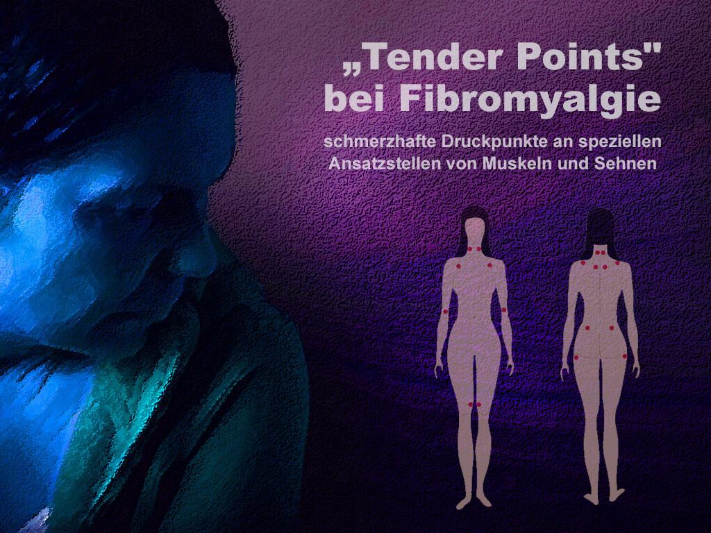 Fibromyalgie-Syndrom, Weichteilrheuma: Weichteilrheuma. Illustration. © + Montage: AFCOM / Alila Medical Media / shutterstock.com