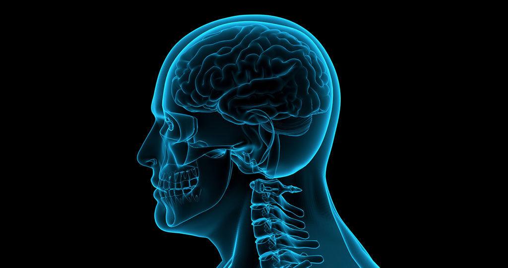 Gehirn © IznoDesign / shutterstock.com