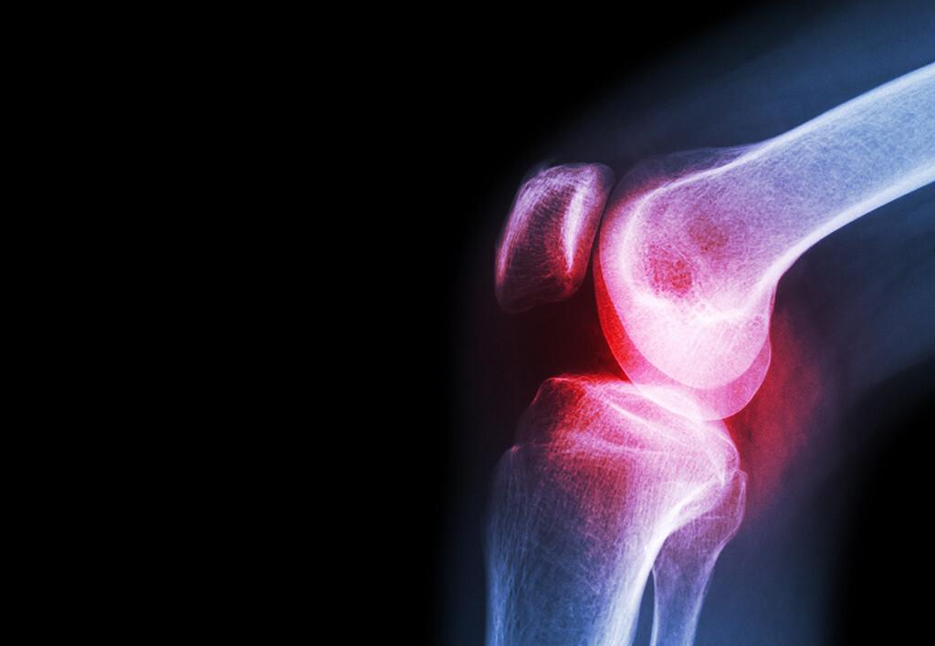 Die Kombinationstherapie mit Glucosaminsulfat und Chondroitinsulfat gegen Osteoarthrose ist jedenfalls in Erwägung zu ziehen. © Puwadol Jaturawutthichai / shutterstock.com