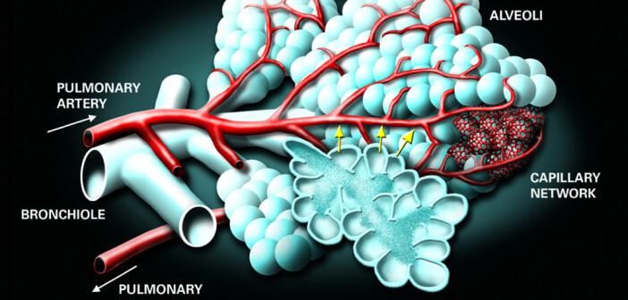 Pulmonale Hypertonie zeigt komplexe pathophysiologische Mechanismen.