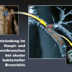 Nur selten entwickelt sich akute Bronchitis zu einer Superinfektion.