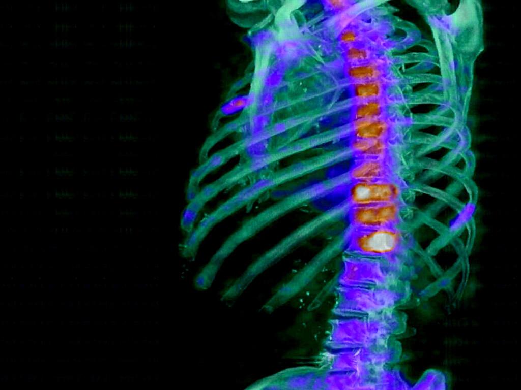Knochenschmerzen und Vitamin-D-Mangel stehen in starkem Zusammenhang (im Bild Szintigraphie bei Knochenschmerzen).