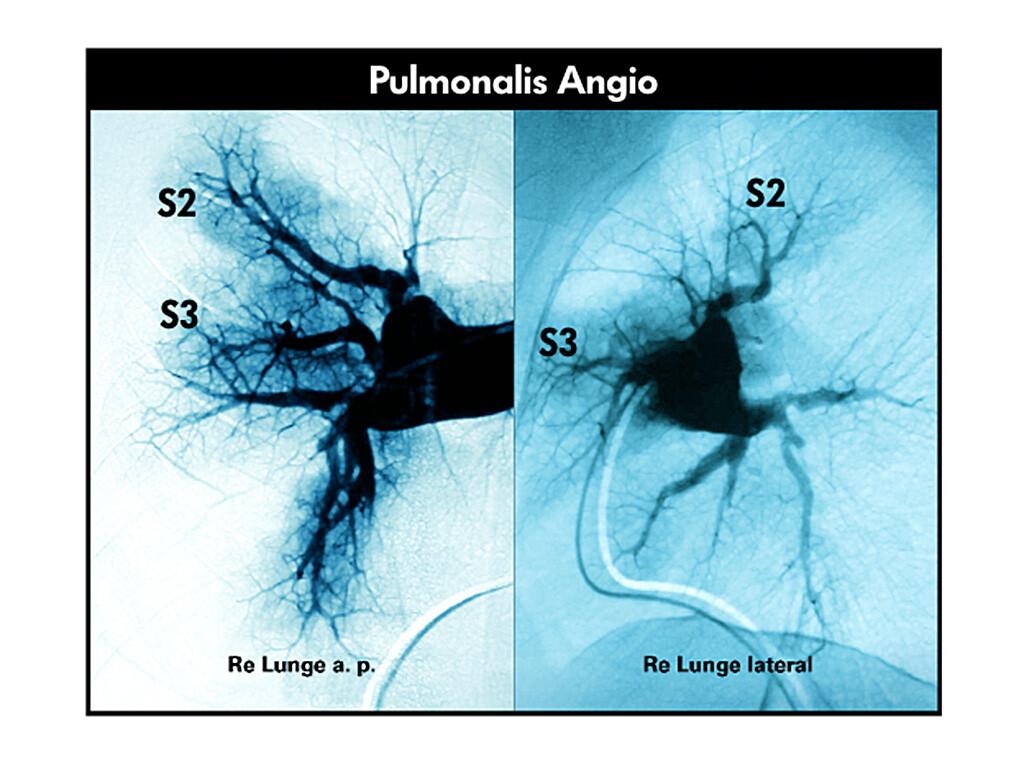 Pulmonale Hypertonie - Klassifikation und Pathophysiologie