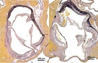 Abbildung zu freien Radikalen: Die histologische Färbung der Aortenwurzel zeigt rechts die verstärkte Plaquebildung ohne Nox4. © Uniklinikum Dresden
