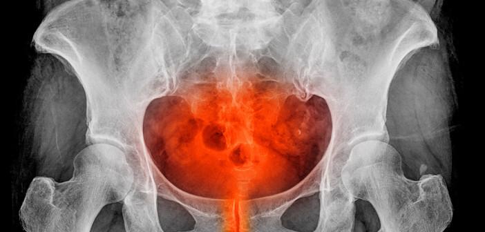 Medikamentös werden Blasenschmerzen allen voran mit Tramadol in retardierter Form einmal täglich therapiert. © thailoei92 / shutterstock.com