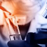 Aufgrund des bisherigen Erfolges von Lupuzor wird nun die Phase-III-Studie begonnen. © Panom Pensawang / shutterstock.com
