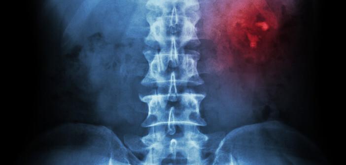Einer von 20 Menschen entwickelt Nierensteine zu einem unbestimmten Zeitpunkt in seinem Leben. © Puwadol Jaturawutthichai / shutterstock.com