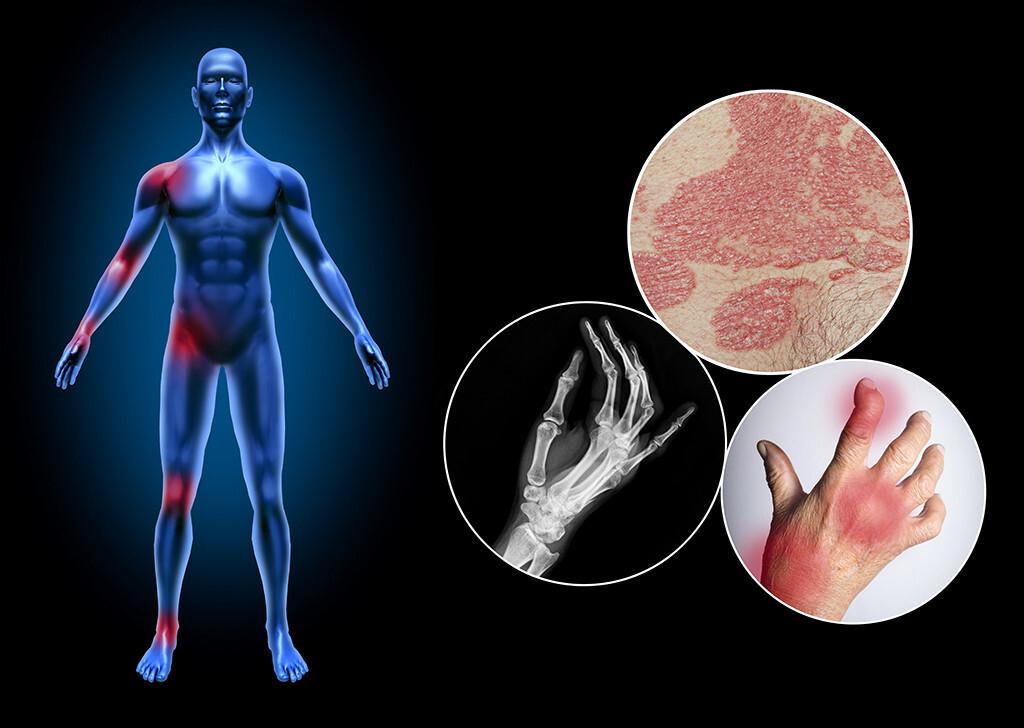 Bei bis zu 50% der Psoriasis-Patienten kommt es zu Psoriasis Arthritis mit Gelenkbeteilung. © Lightspring / Hriana / Kassaraporn / G Croitoru / shutterstock.com