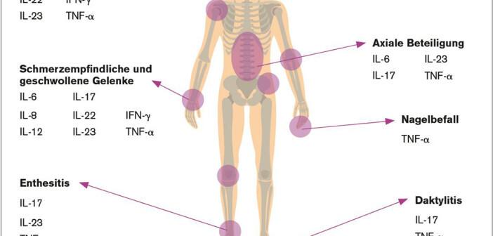 Apremilast interferiert mit allen wichtigen Zytokinen.