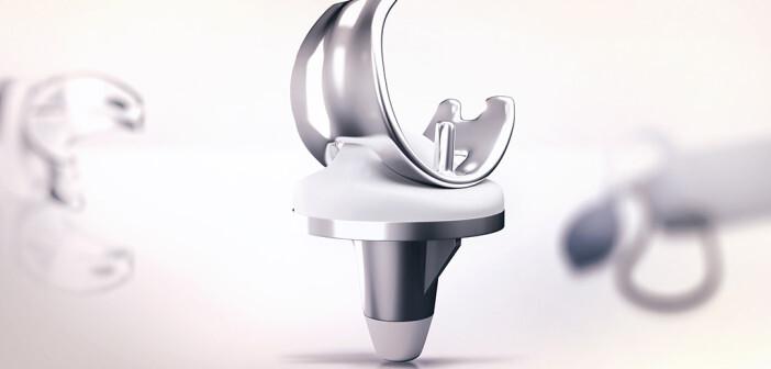 Circa 55 Prozent der Austauschoperationen nach Ersatz von Hüft- und Kniegelenk erfolgen, weil sich die Erstprothese gelockert hat. © Liya Graphics / shutterstock.com