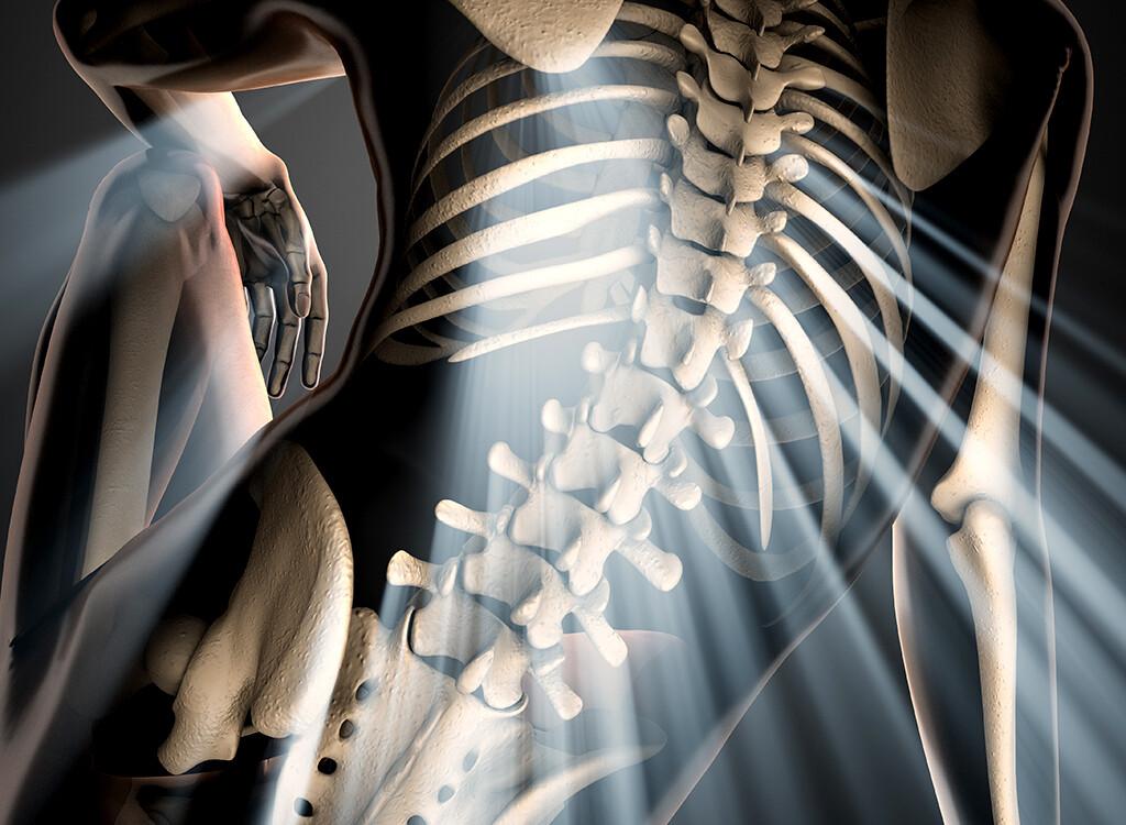Vitamin-D-Mangel vermeiden und so Risiko für Osteoporose geringer halten. © videodoctor / shutterstock.com