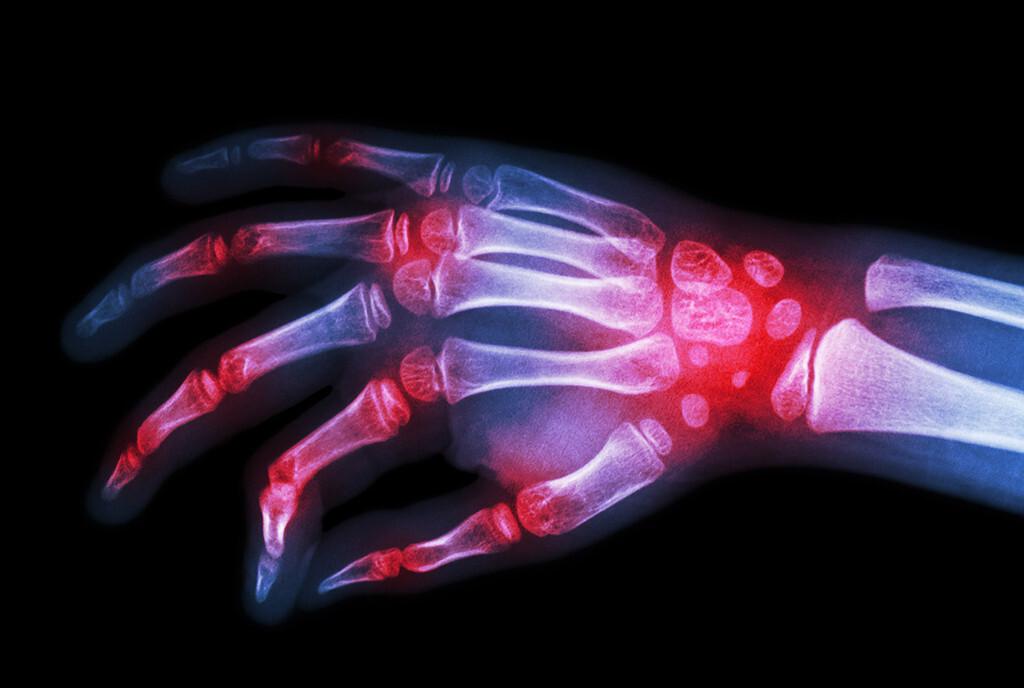 Rheumatoide Arthritis im Fokus von Experten Rudolf Puchner. © Puwadol Jaturawutthichai / shutterstock.com