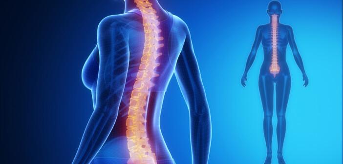 Rückenmarkstimulation gegen Rückenschmerzen