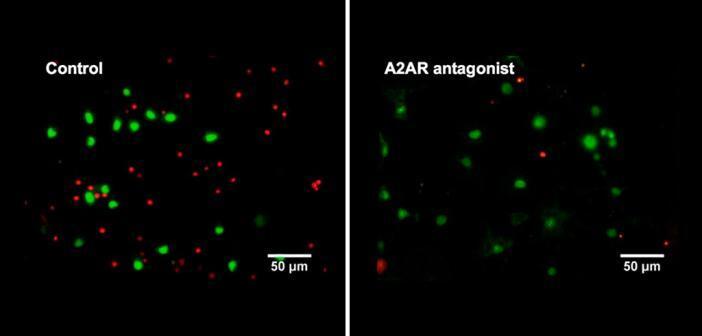 Links: α-Synuklein-Ansammlungen (grün) in menschlichen Zellen sind toxisch und führen zum Zelltod (rote Punkte). Rechts: Die durch Zugabe von Coffein ausgelöste Blockierung von Adenosin A2A Rezeptoren reduziert die Zellsterblichkeit signifikant. © Prof. Outeiro / CNMPB
