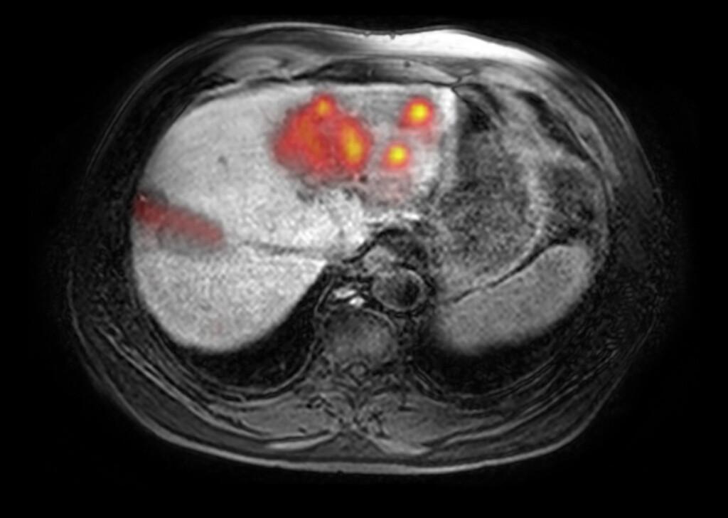 Radiofrequenztherapie bei Lebermetastasen.