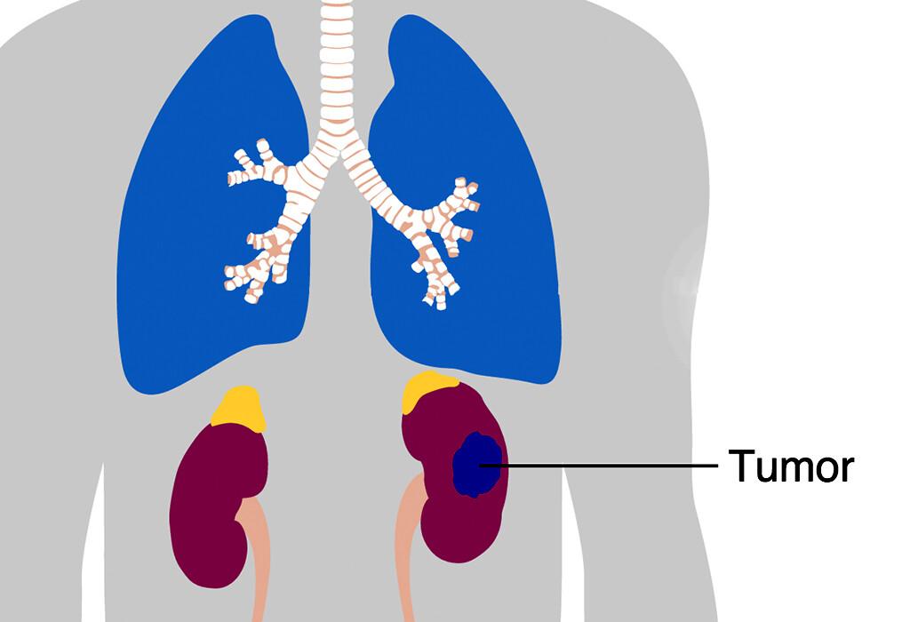 Nierenkrebs tritt bei Männern doppelt so häufig auf wie Frauen. © Cancer Research UK / Wikimedia Commons