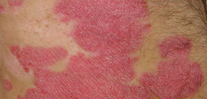Rheuma bei Schuppenflechte sollte früh erkannt werden. © Eisfelder / CC 3.0 / wikimedia